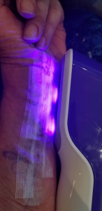 Blue Light acts as an antiseptic and is perfect to use post surgery while dressing is still applied.